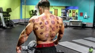 clean cupping therapy abbotsford mission bc cupping therapy by